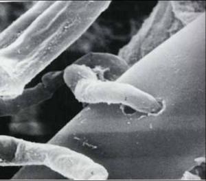 Hifa de Trichoderma parasitando hifa de R-Solani